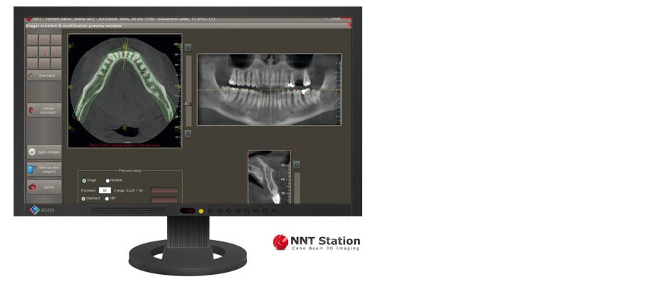 hillus NewTom GiANO NNT-Software Header