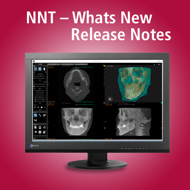newtom-NNT-Software_Release_Notes