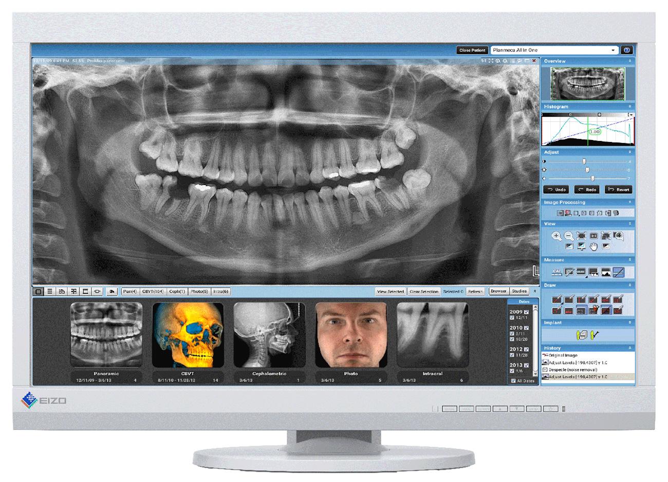 Befundmonitor für die Zahnmedizin - EIZO MX232W-WT